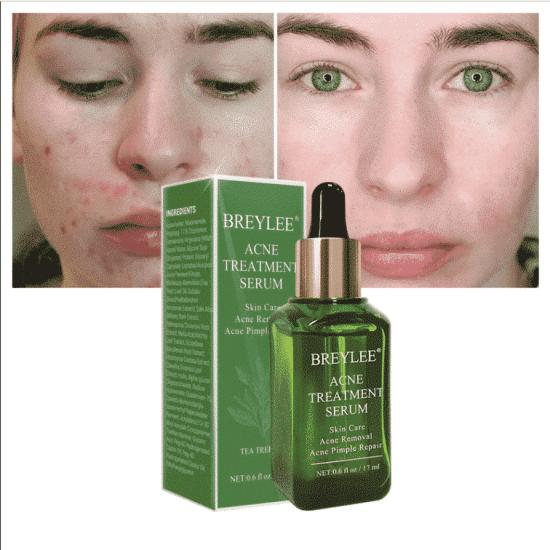 breylee acne serum